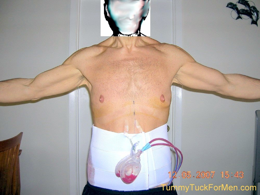 Tummy Tuck Horror Stories - Tummy Tuck For Men